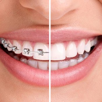 teeth braces for adults