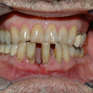 If one does not see the long-lasting effects plaque and tartar buildup can do, most don't take this as seriously as they should.