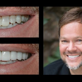 Bret Saunders veneers before and after dental photo gallery from Incredible Smiles in Boulder, CO
