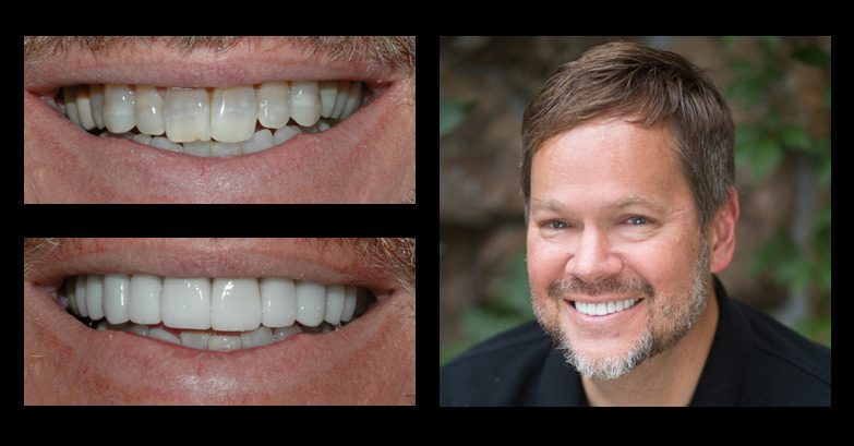 Bret Saunders veneers before and after photos from Incredible Smiles in Boulder, CO