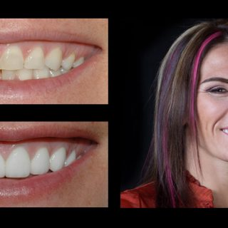 before-after incredible smiles dental photo gallery lynn_cat Z