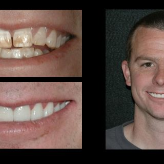 Incredible Smiles Dental Photo Gallery Enoka