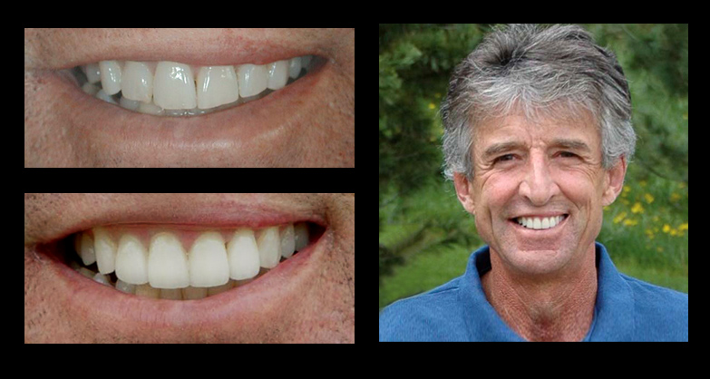 Incredible Smiles Dental Photo Gallery before & after Frank