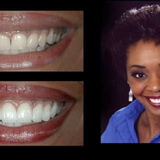 Before and After dental photo gallery Janel