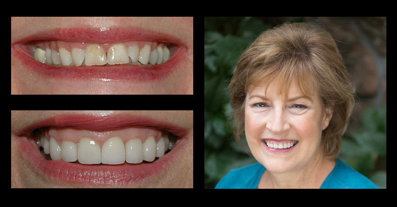 before and after incredible smiles dental photo gallery lynn
