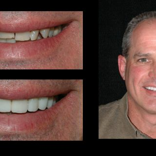 before-after_mike