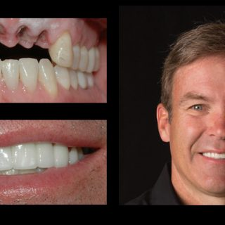 before-after_mike Houtz