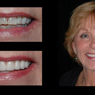 Incredible Smiles Dental Photo Gallery Before and After Sandy
