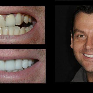 Incredible Smiles Dental Photo Gallery Tyler