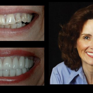 before & after photo gallery at IncredibleSmiles Dentistry Venita