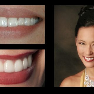 before and after Dental Photo Gallery: Jennifer at Incredible Smiles