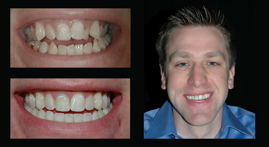 Chris Invisalign Results