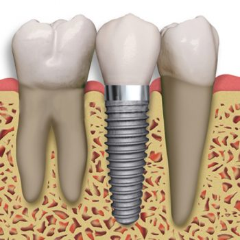 Dental implants are the new standard of care for missing teeth. Consider animplant at Incredible Smiles for a missing tooth.