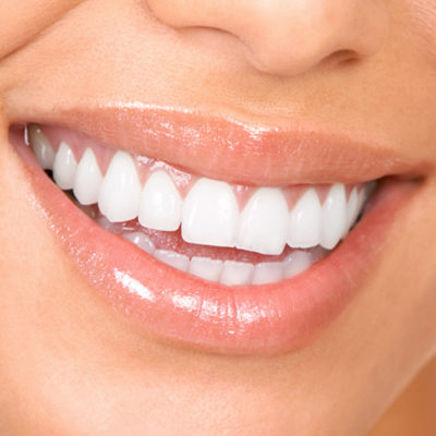 Are you choosing a cosmetic dentist in Boulder or Denver for veneers. Watch this video on choosing a cosmetic dentist.