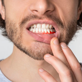 When our patients tell us they floss we know that they either do or don't. How? The tissue health tells us.