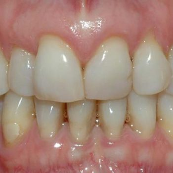 gum recession and exposed root structure put teeth at risk for sensitivity, infection and loss.