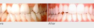 orthodontics and invisalign before and after photos