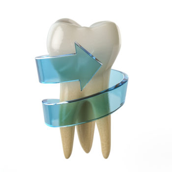 Learn more about root canal and root cause of illness at Incredible Smiles in Boulder, Colorado