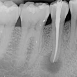root canal linked to root cause?
