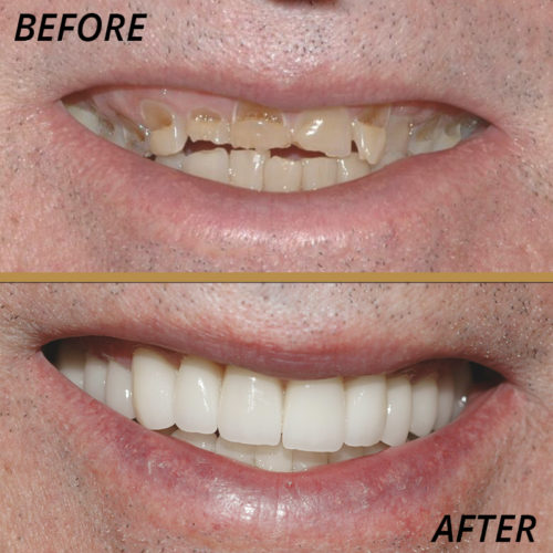 healthy smiles before and after