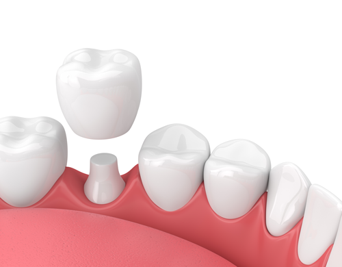 Porcelain Crown - goes completely around tooth, full coverage
