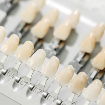 I've been in dentistry for over 30 years and I perform cosmetic dentistry every day. I treat in the smile zone. I have seen the difference that a veneer makes versus a crown on anterior (front of the mouth) teeth.