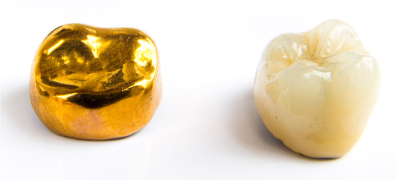 Gold tooth crown and porcelain crowns