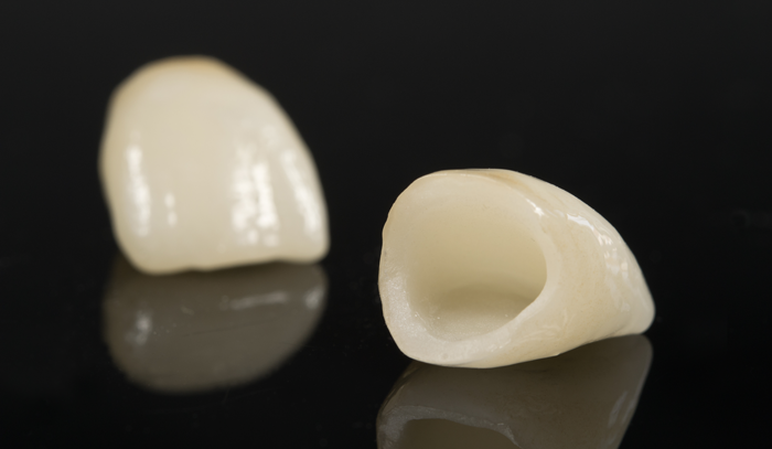 Porcelain Crown - covers the entire tooth.