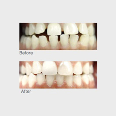 everyone has different issues with their teeth and smile so treatment is unique to the individual. Some need to research the pros and cons of veneers, others just need a simple whitening and some will require braces – the path to a perfect smile is different for everyone.