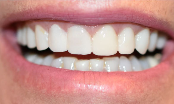 Temporary veneers allow you to feel confident while waiting for your custom veneers to be made for you.