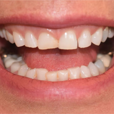The question about temporary veneers comes up during the cosmetic consultation. The temporaries are critical to the entire process.