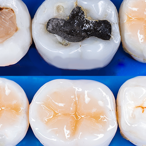 Mercury fillings are toxic to our health. Learn the basics about the cost of mercury filling removal and the steps involved in the procedure.